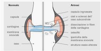 Ossigeno Ozono Terapia e Artrosi